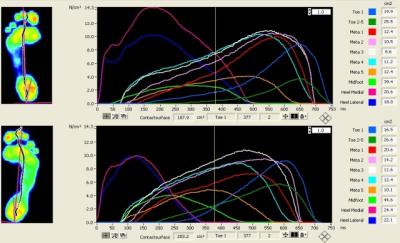 Komputerowa analiza stóp